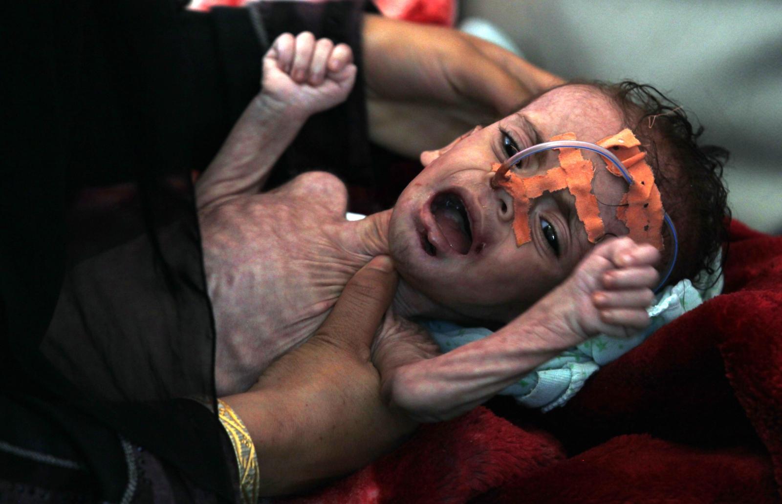 Niedożywione dziecko leczone z racji pogarszających się warunków życiowych, Sana, Jemen.