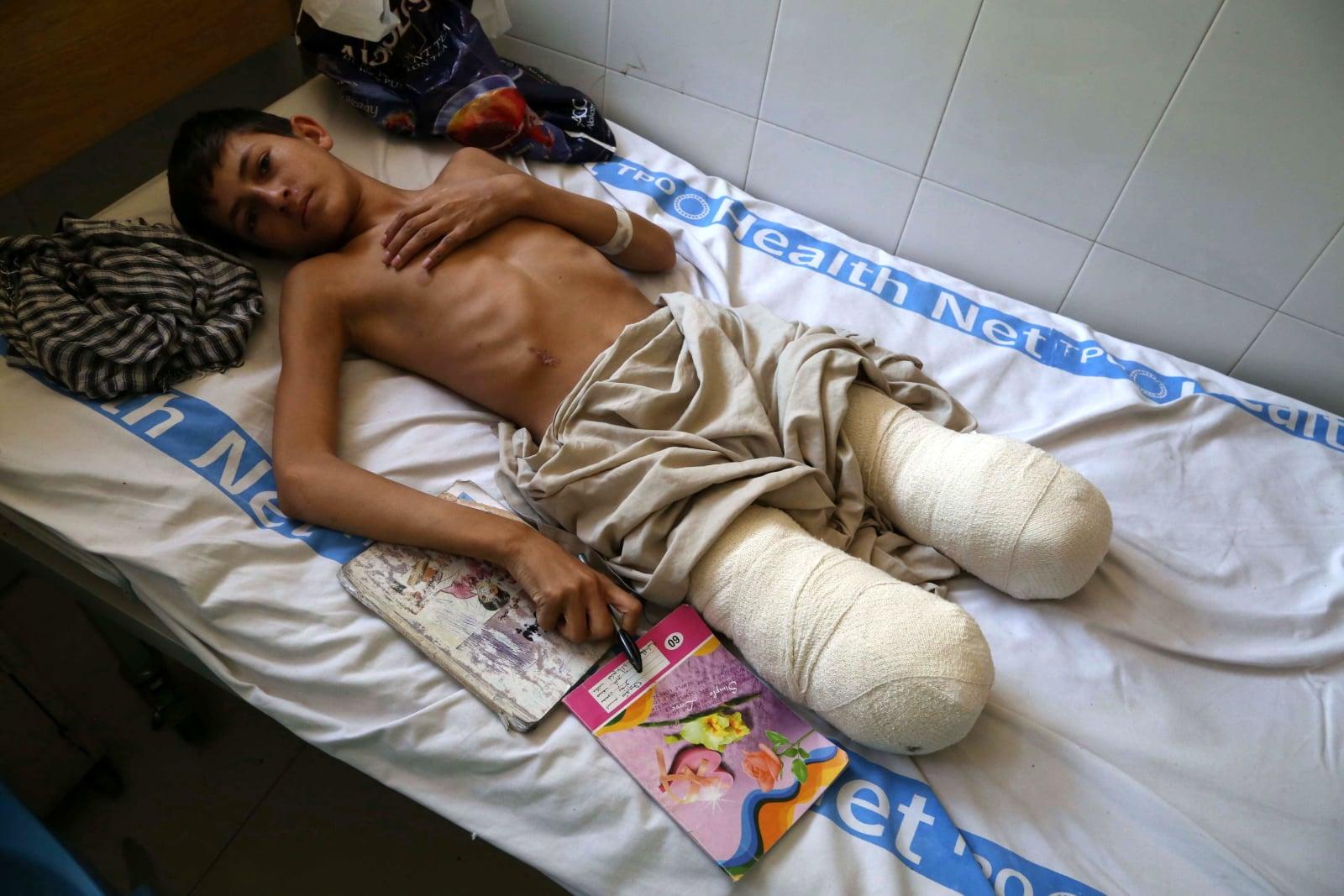 Skutki konfliktu w Afganistanie fot. EPA/GHULAMULLAH HABIBI