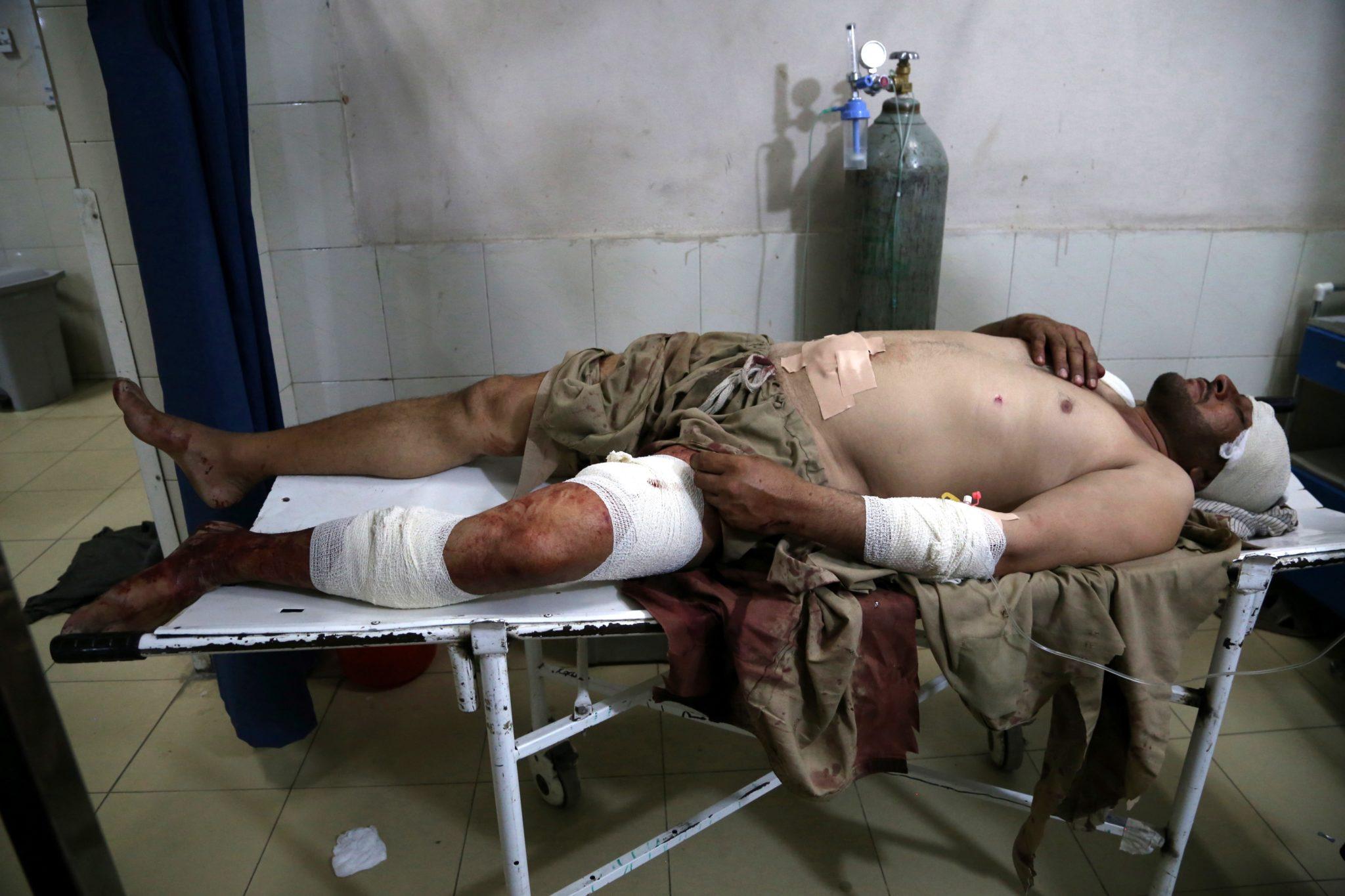 Afganistan. Ranny w ataku zamachów samobójczych w prowincji Nangarhar, szpital w Dżalalabadzie, fot. Ghulamullah Habibi, PAP/EPA