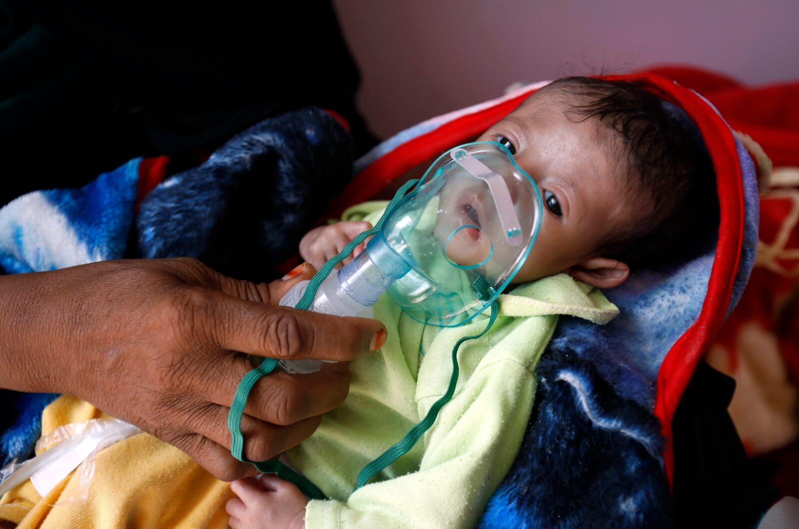 Dzieci cierpiące przez konflikt w Jemenie fot. EPA/YAHYA ARHAB